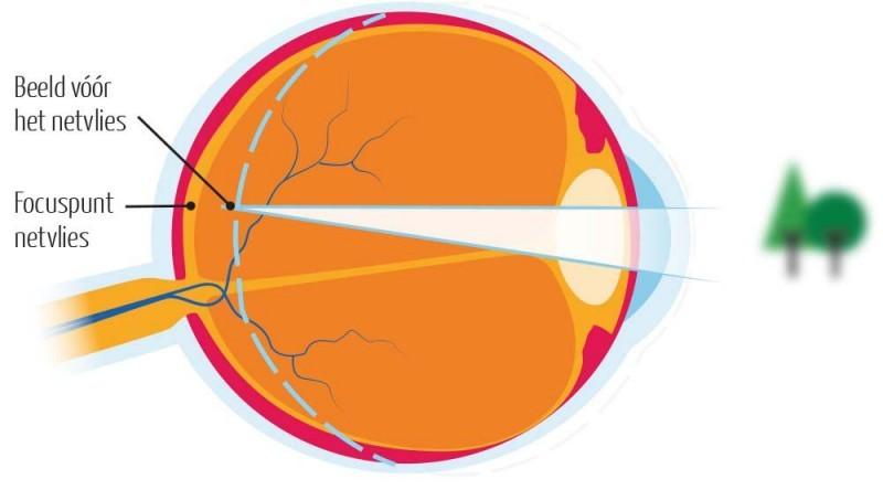 bijziendheid-optometrie